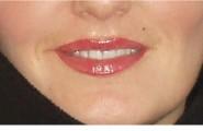 Lippen nachher Kosmetik-Insel in Freiburg
