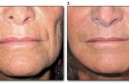 Unterspritzung der Nasolabialfalten bei einer Frau