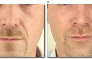 Unterspritzung der Nasolabialfalten bei einem Mann